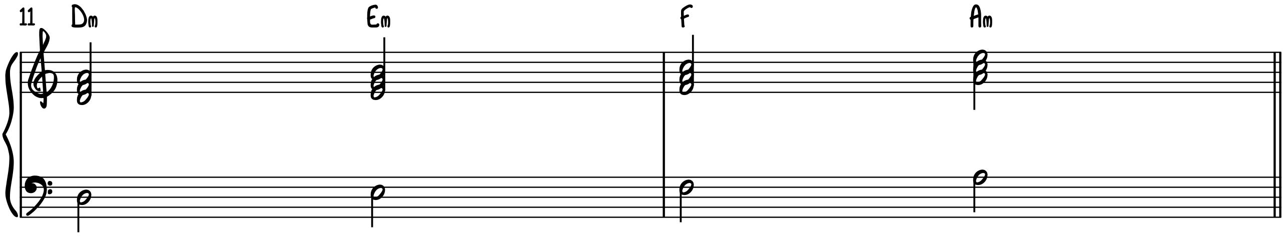 Progression 1 Standard Triads